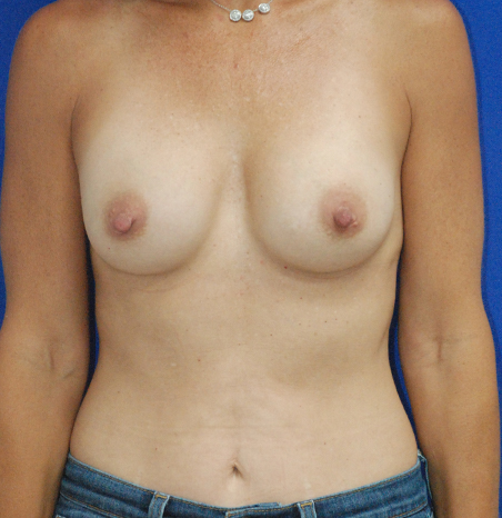 Breast Augmentation in Washington, D.C.