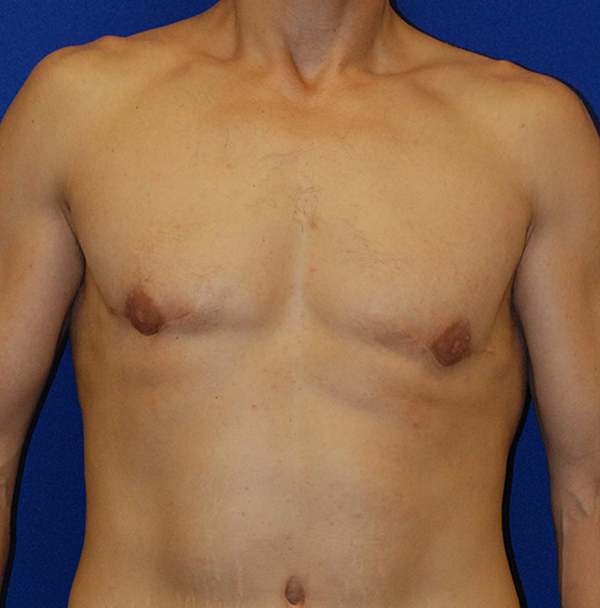 Gynecomastia Washington, D.C.